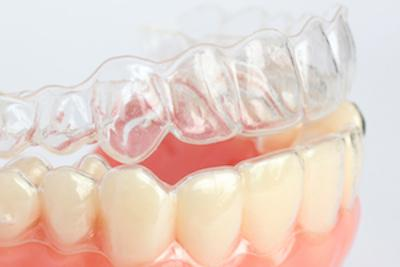 Clear Braces | Avenida Dental Centre