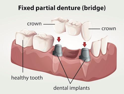 Diagram of implant supported dental bridge | Dentist Calgary AB