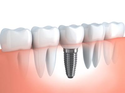 Illustration of dental implant with crown | Dentist Calgary AB