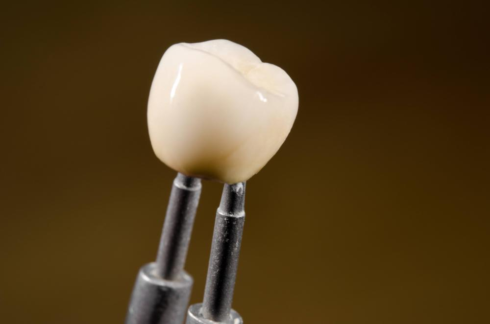 dental crowns | cosmetic dentistry calgary ab