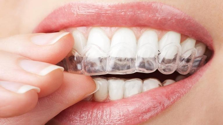 teeth with clear aligners on