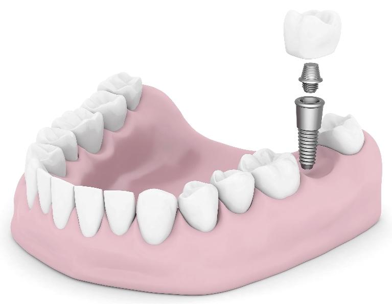 Dental implant diagram | dentist calgary AB